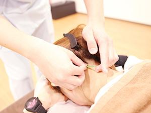 鍼灸施術の様子